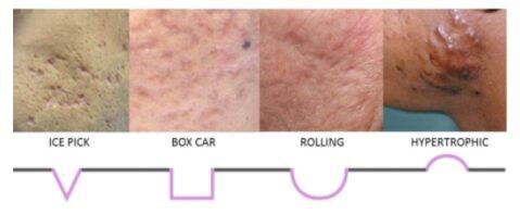 Acne Scars3